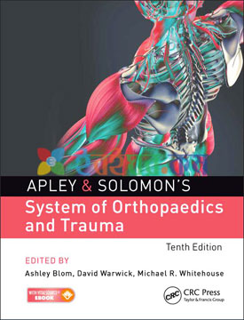 Apley's System of Orthopaedics and Fractures (Color)
