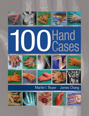 100 Hand Cases (Color)