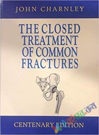 The Closed Treatment of Common Fractures